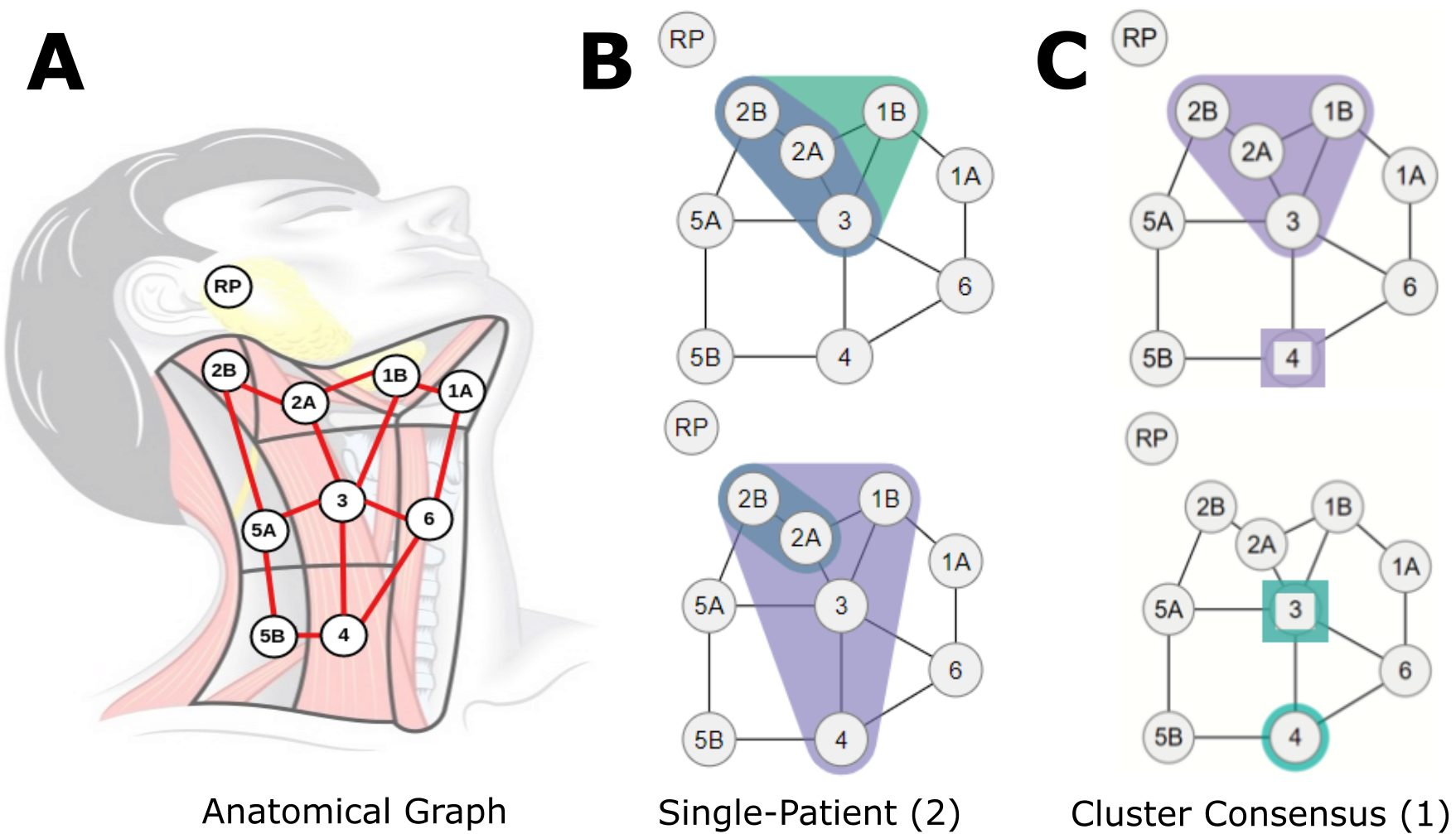 (A) Lymph nodes overlaid over a diagram of the neck. (B) Example graphs of diseased nodes for 2 individual patients (datapoint representation). (C) Example consensus graph for 1 cluster (cluster representation).